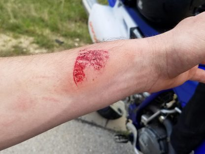 Head-on Crash Causes Unique Porsche Tattoo